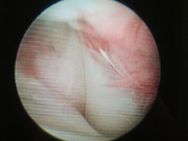 Artroscopia della spalla