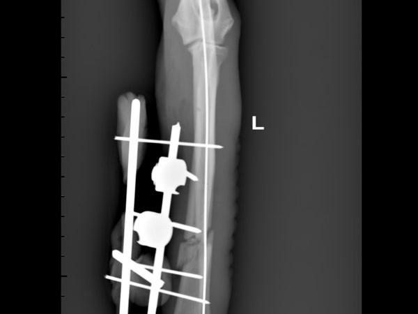 Osteosintesi esterna