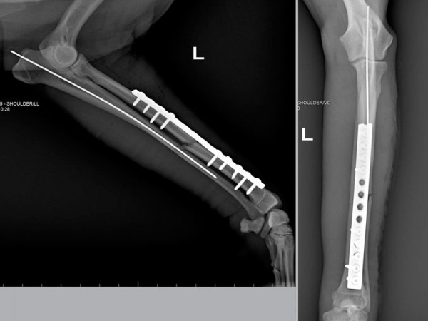 Osteosintesi interna
