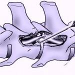 emilaminectomia cane
