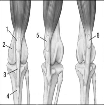 1.rotula; 2. solco trocleare; 3. legamento tibio-rotuleo; 4. cresta tibiale; 5. lussazione mediale di rotula; 6. lussazione laterale di rotula.