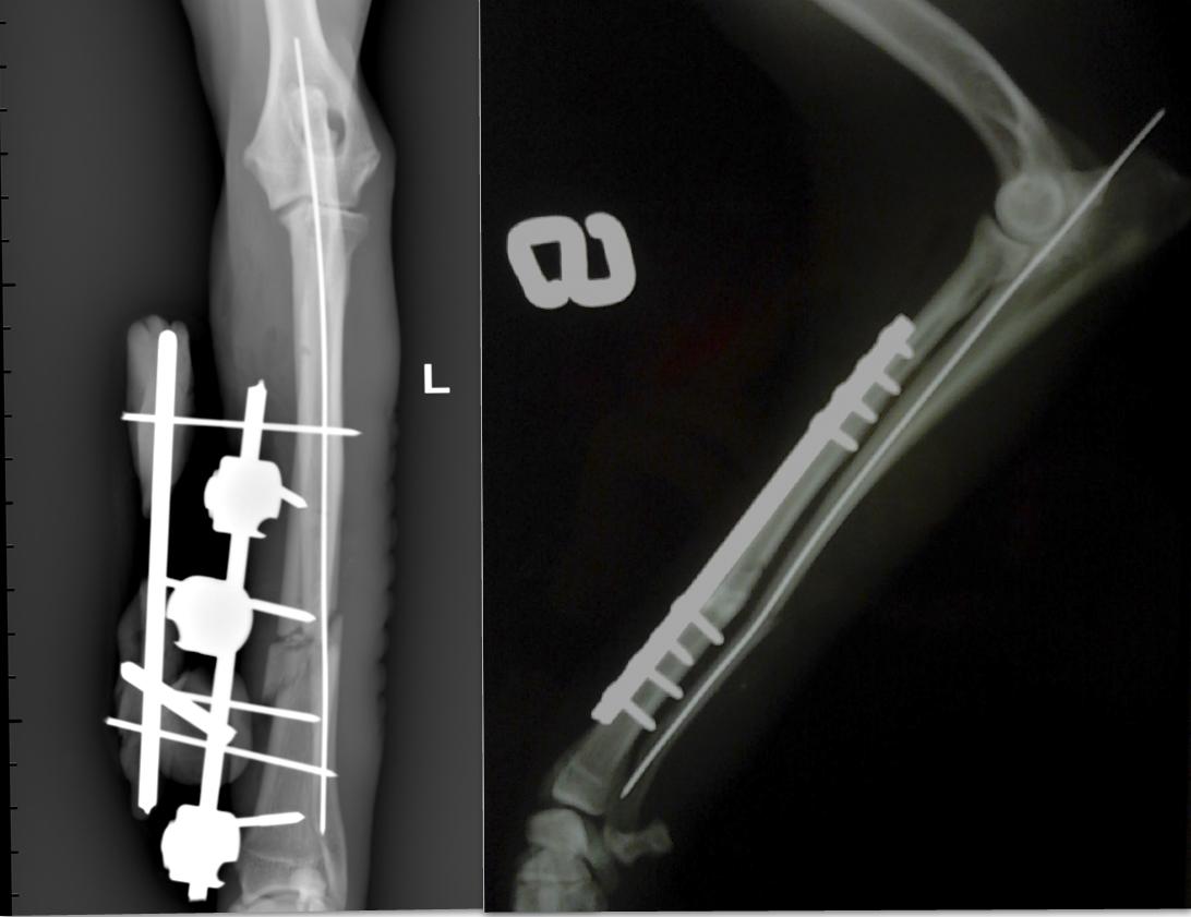 frattura radio-ulnare trattata con fissatore esterno Vs placca e viti