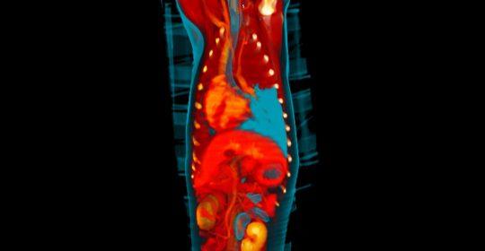 Il paziente oncologico: cosa non fare
