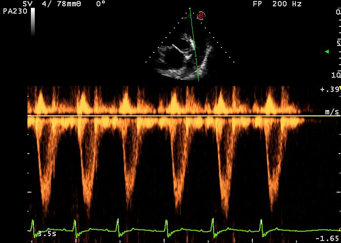 flusso polmonare normale